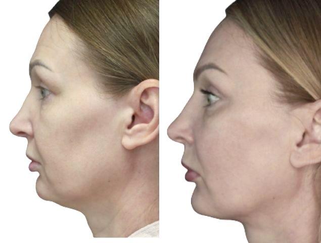 niťový lifting Lícní kosti a pokleslé ústní koutky